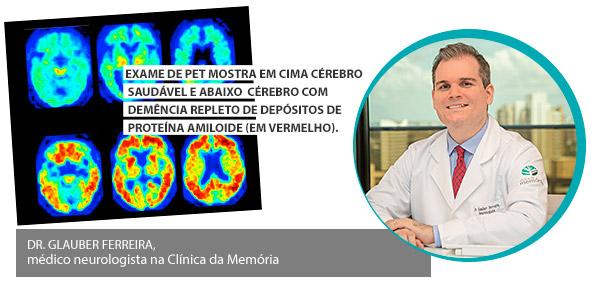 Uma vacina para Doença de Alzheimer